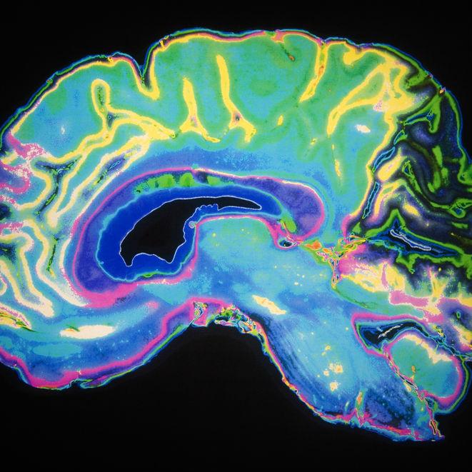 התחרות הארצית הראשונה לידע המוח בקרב תלמידי תיכון בישראל תתקיים באוניברסיטת תל-אביב