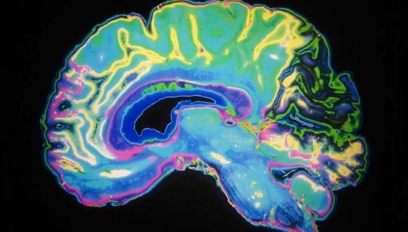 מחקר חדש מראה כי עלייה בחלבון טומוזין במוח עשויה להיות קשורה עם מחלות דגנרטיביות כדוגמת אלצהיימר