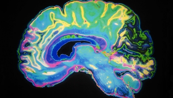 בית הספר סגול למדעי המוח השיק שני מרכזי יזמות חדשניים