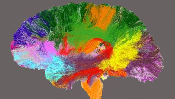 אטלס של המוח האנושי