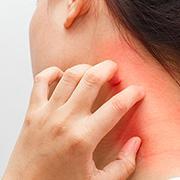 תרופה פוטנציאלית ל״אסתמה של העור״